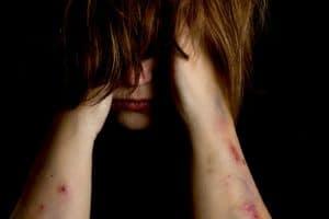 אלימות אשה