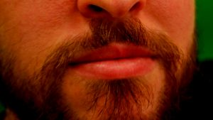 פנים שפתיים של גבר